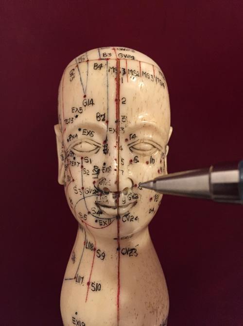 Elektroakupunktur nach Voll